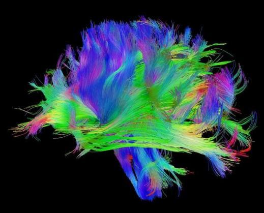 3024528-slide-s-brain-03