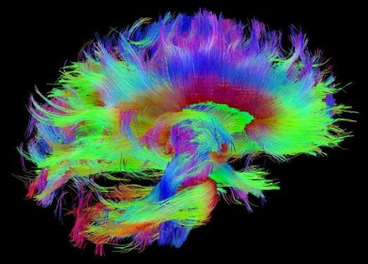 3024528-slide-s-brain-04