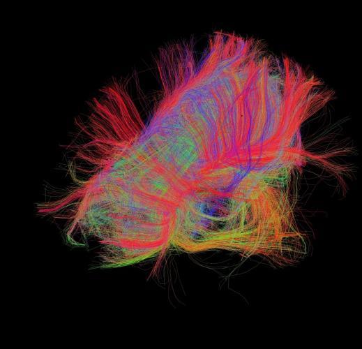 3024528-slide-s-brain-06