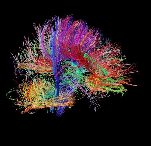 3024528-slide-s-brain-08