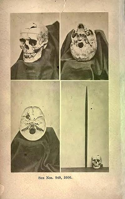 Cráneo exhumado de Gage y su vara. 1870