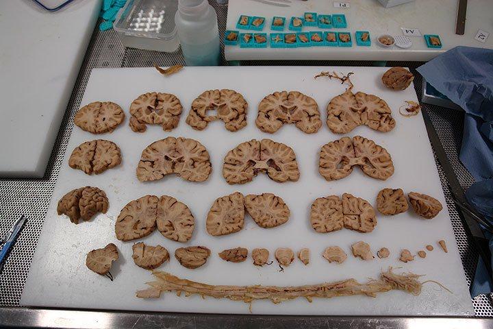 Secciones del Cerebro y de la Médula Espinal del Banco de Tejidos del Imperial College.