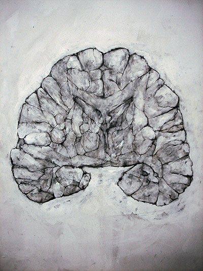 """Tejido Nervioso 1"" (Nervous Tissue 1) de David Marron; dibujo."