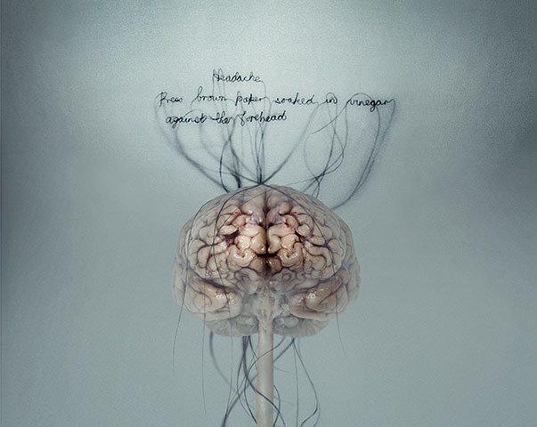 """Dolor de Cabeza -Detalle-"" (Headache) de Helen Pynor. Fotografía tipo C en Duratran."