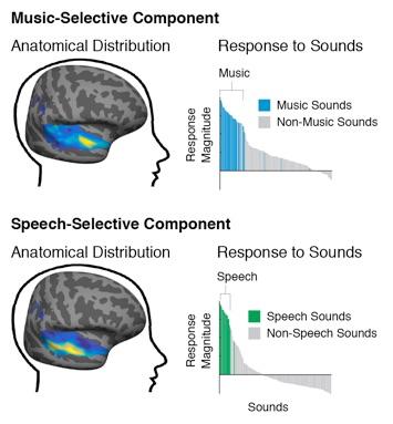 Areas de la Música y Áreas del Habla (http://mcdermottlab.mit.edu/svnh/Natural-Sound/Overview.html)