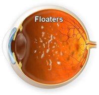 Motas en la Retina