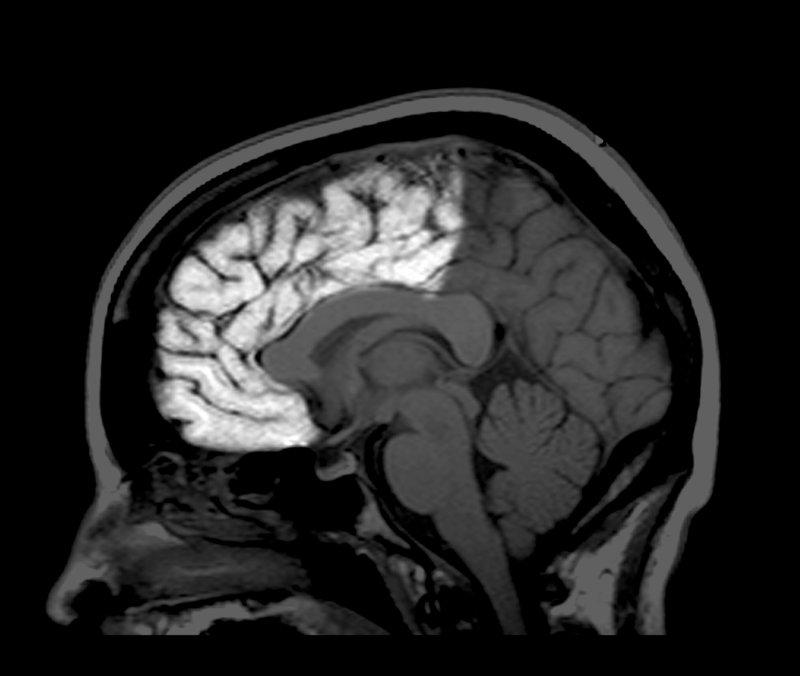 Un escáner MRI en el que se resalta el lóbulo frontal. A medida que las personas maduramos, el reformato del cerebro se ralentiza pero hasta los 30 años o más, aún se forman nuevos enlaces.