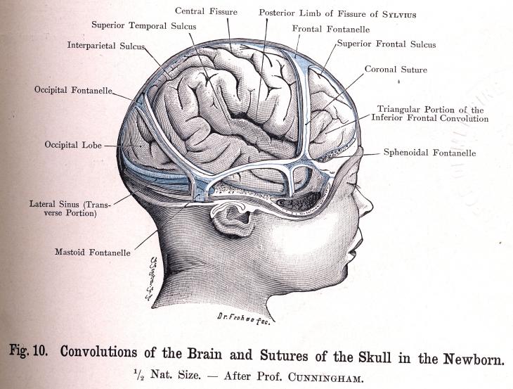 Cerebro de un Recién Nacido
