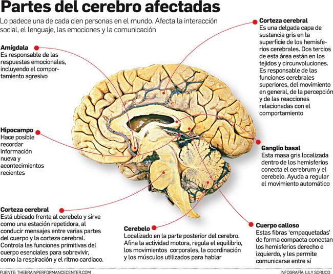 Partes del Cerebro afectadas por el Trastorno del Espectro Autista