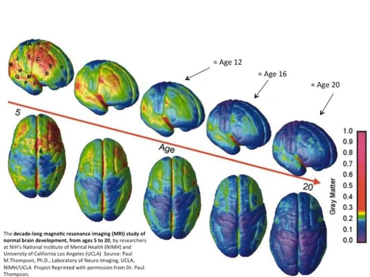 Evolución de la materia gris del cerebro