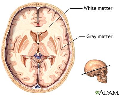Materia Blanca (White Matter) y Materia Gris (Gray Matter)