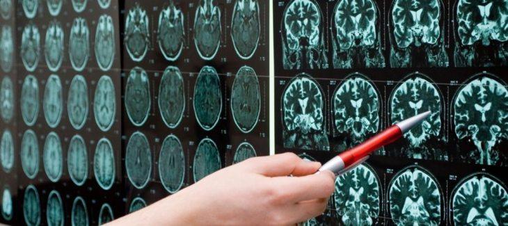brain-scans-point-1024x456