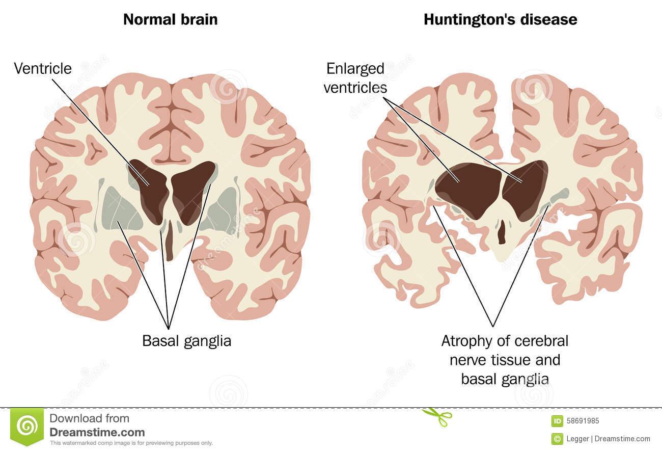 Células Gliales   Feel the Brain