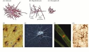 Células Gliales. Primera Fila: Astrocito, Oligodendrocito y Célula Microglial
